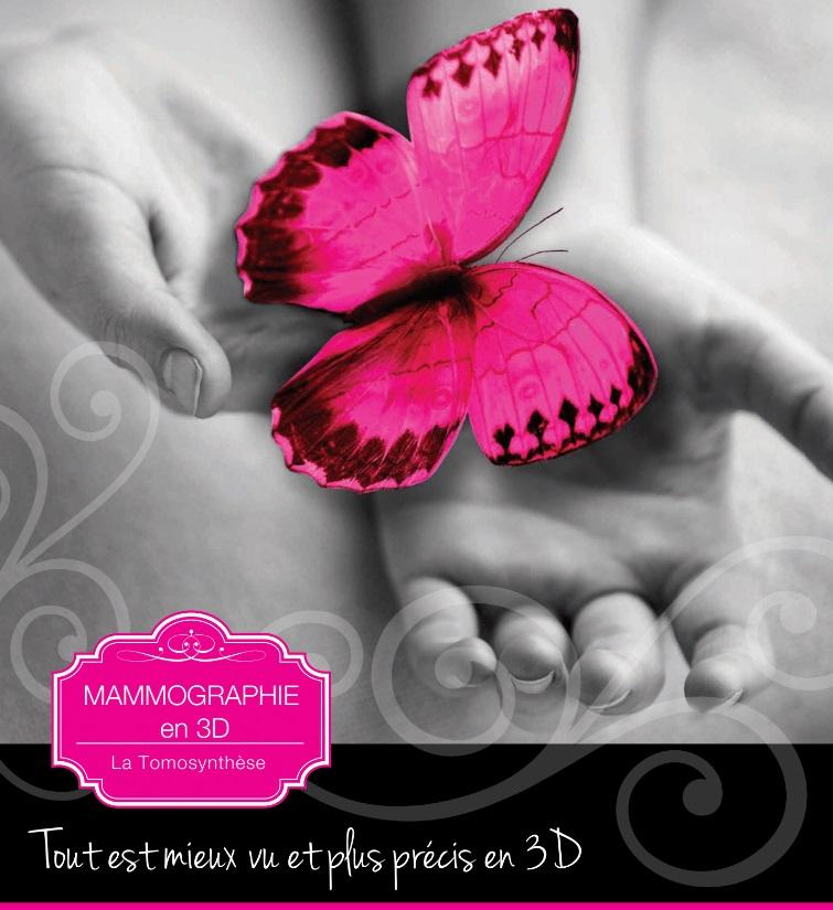 Mammographie 3D