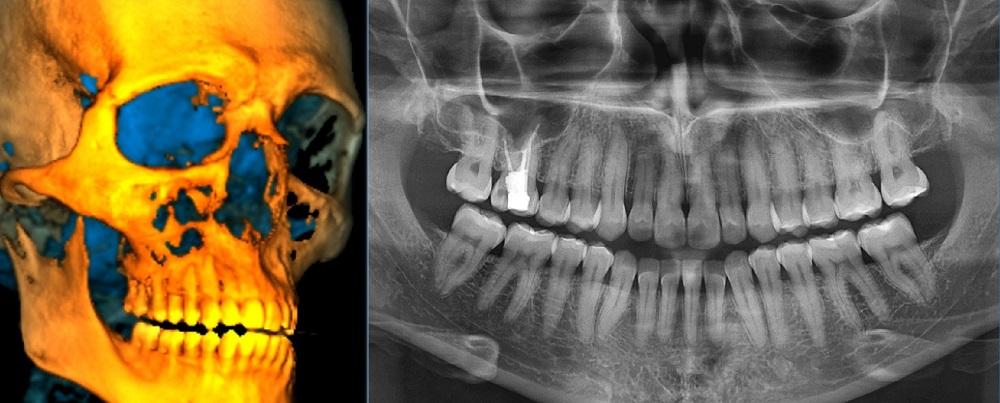 Panoramique dentaire par cone beam